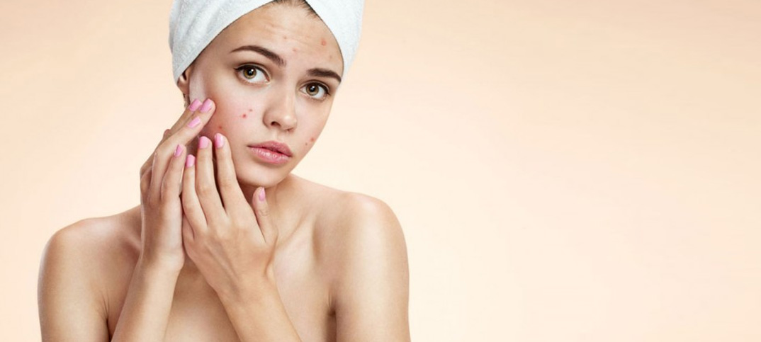 Tips to Remove Pimple