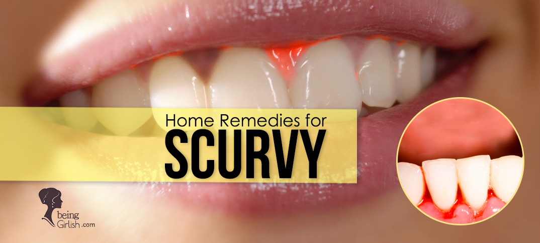 home remedy for scurvy