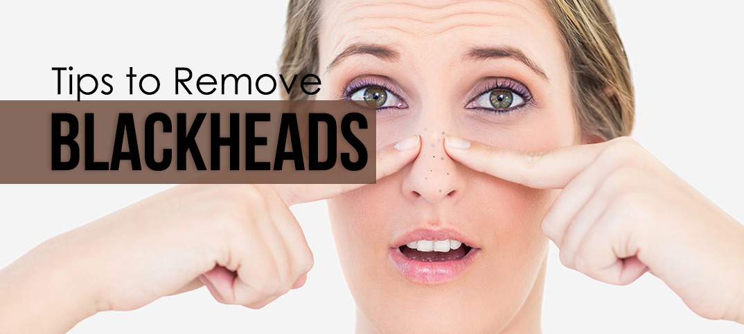 tips to remove blackheads