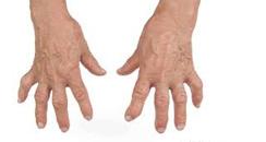 Relieves Arthritis