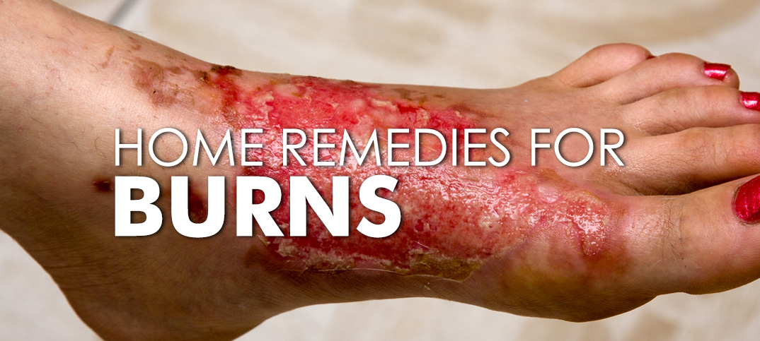 home remedies for burns